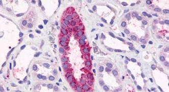TAAR6 Antibody (PA5-34242)
