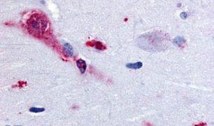 TAAR1 Antibody (PA5-33066)