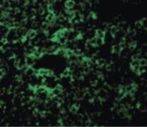 TAK1 Antibody (PA5-20083)