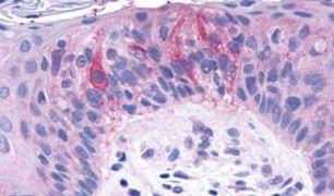 TAS1R2 Antibody (PA5-34254)