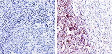 TRAC Antibody (TCR1145)