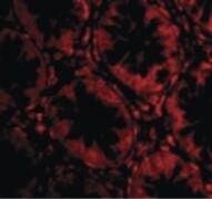 TEM2 Antibody (PA5-20438)