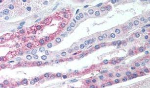TGR5 Antibody (PA5-34261)