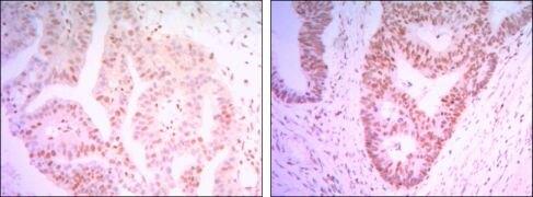 THAP11 Antibody (MA5-15674)