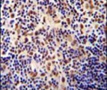 TIGD3 Antibody (PA5-24519)