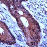 TIMP1 Antibody (PA5-32619)