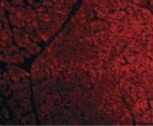 TIRAP Antibody (PA5-20028)