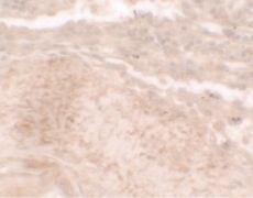 TLX3 Antibody (PA5-34555)