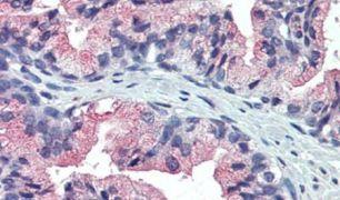 TM9SF3 Antibody (PA5-34267)