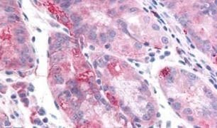 TMEM33 Antibody (PA5-33079)