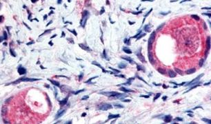 TMEM5 Antibody (PA5-33081)