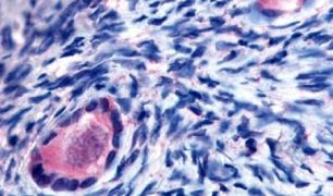 TMEM5 Antibody (PA5-33082)