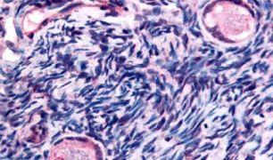 TMEM5 Antibody (PA5-33083)
