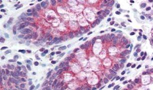 TMPRSS4 Antibody (PA5-33084)