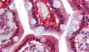 TMPRSS4 Antibody (PA5-34272)