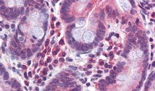TMPRSS4 Antibody (PA5-34273)