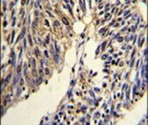 TNFRSF14 Antibody (PA5-26103)