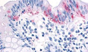 COT Antibody (PA5-33914)
