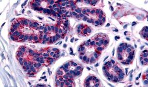 TRIB3 Antibody (PA5-34280)