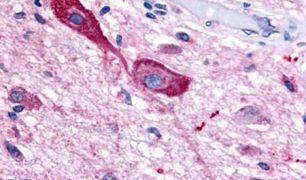 TRHR Antibody (PA5-34279)