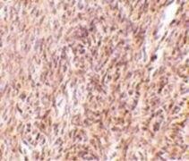 TRIM30 Antibody (PA5-20591)