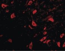 TRIM5 delta Antibody (PA5-20048)