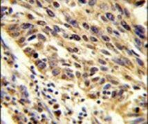 TRIP13 Antibody (PA5-12461)