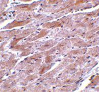 TRPC3 Antibody (PA5-20255)