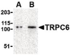 TRPC6 Antibody (PA5-20257)