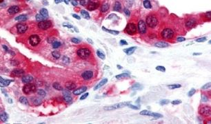TRPM8 Antibody (PA5-34286)