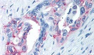 TRPM8 Antibody (PA5-34287)