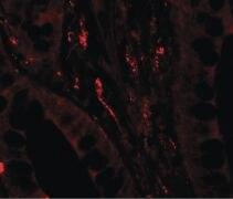 TSC22D3 Antibody (PA5-34506)