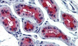 TSH Receptor Antibody (PA5-34296)