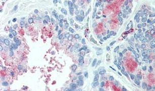 TSPAN13 Antibody (PA5-33092)