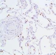 TTF1 Antibody (MA5-16406)