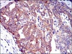 PTK9 Antibody (MA5-17194)