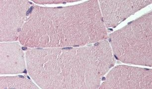 TXLNB Antibody (PA5-33096)