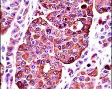 Tyrosinase Antibody (PA5-14233)