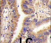 TGM2 Antibody (PA5-14966)