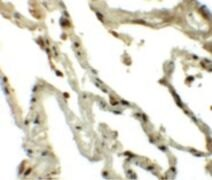 TSN Antibody (PA5-21150)