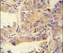 UBA52 Antibody (PA5-23685)