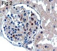 UBC9 Antibody (PA1-9111)