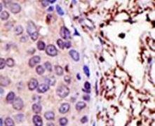 UBE2L3 Antibody (PA5-11966)