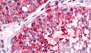 UCHL3 Antibody (PA5-33097)