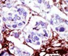 CMPK1 Antibody (PA5-15420)