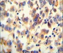 UGT3A2 Antibody (PA5-23863)