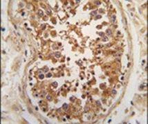 ULK3 Antibody (PA5-15397)