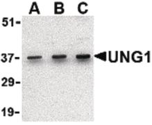 UNG Antibody (PA5-20264)