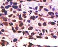 USP25 Antibody (PA5-12031)