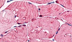 USP2 Antibody (PA5-33101)